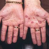 若い女性の「梅毒」感染が急増。医師も危惧する異常事態
