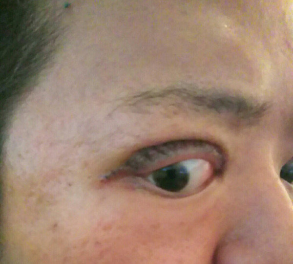 湘南美容外科で成功した人・失敗した人:コメント32